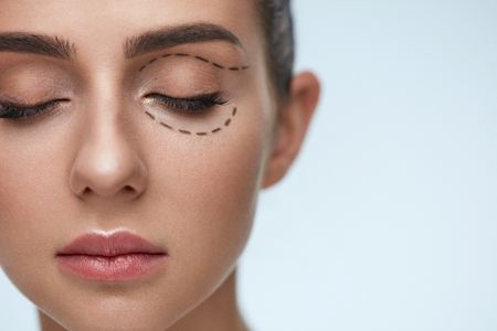 Plastic Surgery Operation. Closeup Beautiful Young Woman Face With Fresh Skin And Perfect Makeup On White Background. Female Face With Black Surgical Lines On Eyelids And Under Eyes. High Resolution