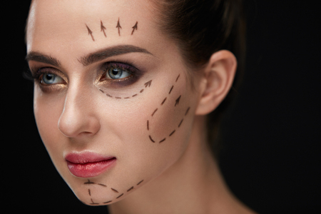 Beauty. Closeup Of Beautiful Sexy Woman With Soft Skin And Black Surgical Lines On Face. Portrait Of Healthy Young Female Model With Perfect Makeup Before Plastic Surgery Operation. High Resolution Stock Photo