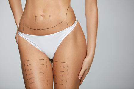 Chirurgische Linien Auf Der Körper der schönen Frau Closeup von weiblichen Slim Fit Körper mit schwarzen Markierungen auf Haut vor Plastische Chirurgie Operation. Mädchen in der perfekten sexy Körperform in der weißen Unterwäsche. Hohe Auflösung Standard-Bild - 76263428
