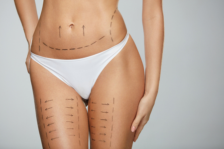 Surgical Lines On Beautiful Woman's Body. Closeup Of Female Slim Fit Body With Black Marks On Skin Before Plastic Surgery Operation. Girl In Perfect Sexy Body Shape In White Underwear. High Resolution