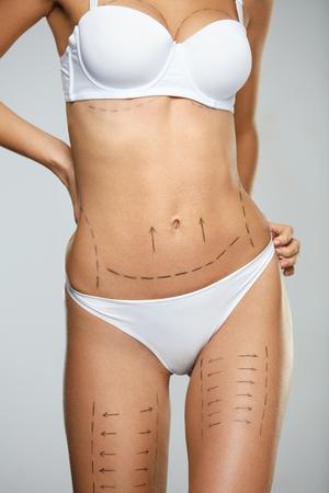 Vrouw Lichaam plastische chirurgie operatie. Close-up van Mooi Sexy Wijfje met Perfecte Geschikte Lichaamsvorm en Zwarte Chirurgische Lijnen op Huid in Wit Ondergoed op Grijze Achtergrond. Cosmetologie. Hoge resolutie