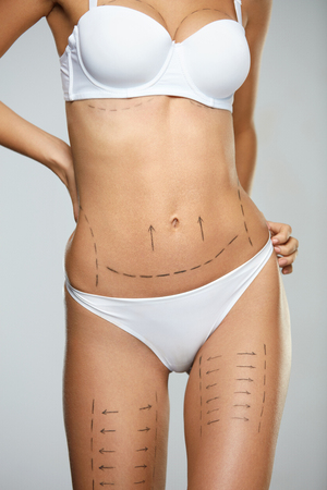 Woman Body Plastic Surgery Operation. Closeup Of Beautiful Sexy Female With Perfect Fit Body Shape And Black Surgical Lines On Skin In White Underwear On Grey Background. Cosmetology. High Resolution Stock Photo