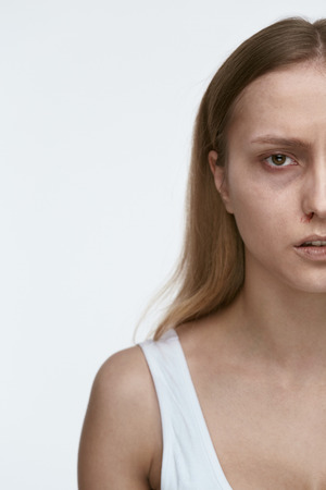 Woman Against Violence. Tired Woman Face With Wounds. High Resolution. Stock Photo