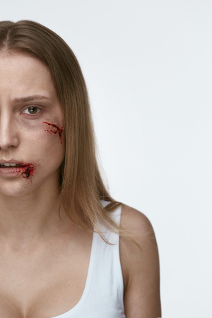 Violence Against Women. Frightened Woman With Bloody Wound On Face On White Background. High Resolution. Reklamní fotografie