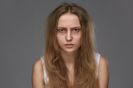 Exhausted Young Woman With Dark Circles And Bags, Bruises Under Eyes And Long Brittle Hair. High Resolution.
