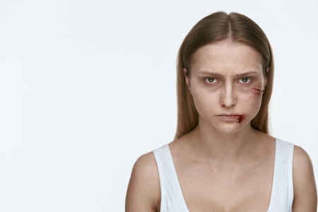 Domestic Violence. Woman With Beating And Bloody Wounds On Face. High Resolution.