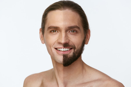 Shaving. Man With And Without Hair On Face On White Background. High Resolution.