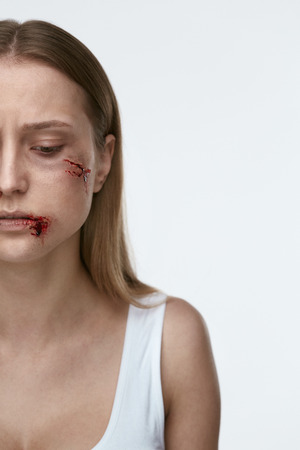 Violence Against Women. Frightened Woman With Bloody Wound On Face On White Background. High Resolution. 写真素材