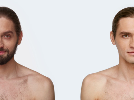Man Face Before And After Shaving. Handsome Male With And Without Beard On White Background. High Resolution.