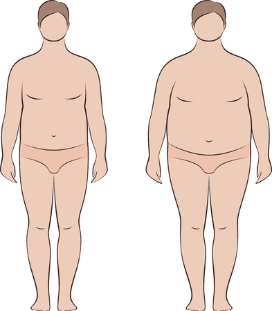 Vector illustration of mens figure. Body types and proportions with increased fat deposition