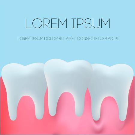 Realistic denture illustration vector on blue background. Dental concept.  イラスト・ベクター素材