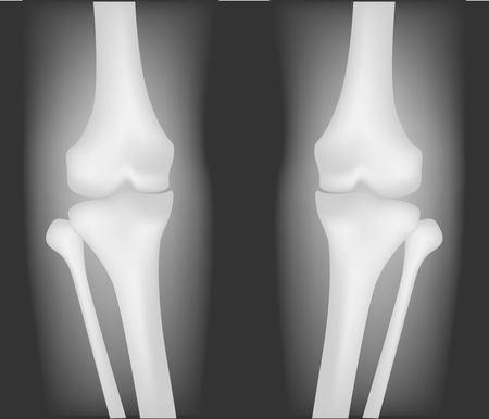 Realistic knee x-ray vector illustration.
