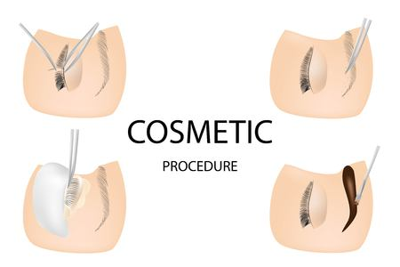 Eyelash cosmetic Procedures: Staining, Curling, Laminating,Extension for Lashes, shape eyebrows paints eyebrows 免版税图像 - 121478903