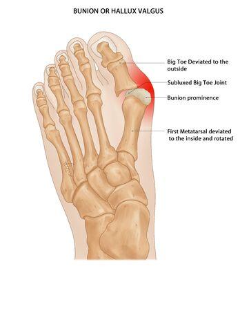 Bunion Annotated, Bunions, Hallux valgus feet, feet bones, big toe, foot, Stock Photo