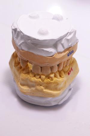 plaster mould: model plaster of human teeth Stock Photo