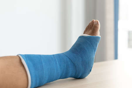 Blue ankle and foot splint Bandages on the legs from a young man's fall accident, Blue plaster on the ankle. Foto de archivo