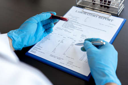 Scientists or physicians analyze the blood sample in vitro to prepare a vaccine against a new strain of viruses, Vaccine Research and Science concept. Reklamní fotografie