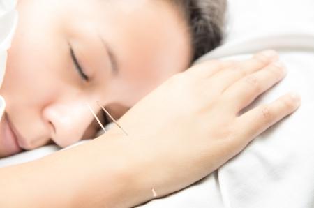 acupuncturist: La acupuntura paciente con agujas a lo largo de brazo
