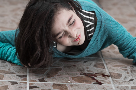 tumble down: pretty young upset girl with a bleeding nose after falling down