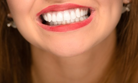 renewed: Closeup young womans mouth showing white healthy teeth.