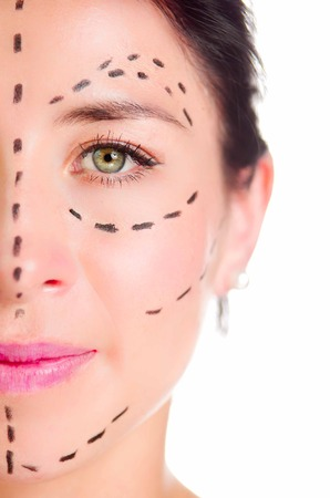 correction lines: Closeup half of face caucasian woman with dotted lines drawn around left eye, preparing cosmetic surgery,