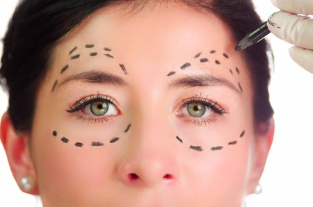 looking into camera: Closeup headshot caucasian woman with dotted lines drawn around eyes looking into camera, preparing cosmetic surgery. Stock Photo