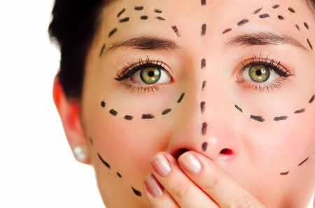 correction lines: Closeup headshot caucasian woman with dotted lines drawn around face looking into camera, skeptical facial expression, preparing cosmetic surgery. Stock Photo