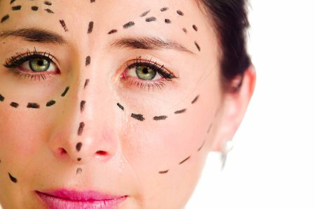 looking into camera: Closeup headshot caucasian woman with dotted lines drawn around face looking into camera, preparing cosmetic surgery.