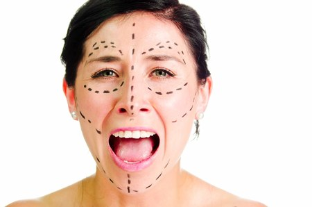 looking into camera: Closeup headshot caucasian woman with dotted lines drawn around face looking into camera, preparing cosmetic surgery, screaming facial expression. Stock Photo