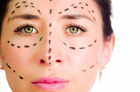 correction lines: Closeup headshot caucasian woman with dotted lines drawn around face looking into camera, preparing cosmetic surgery.