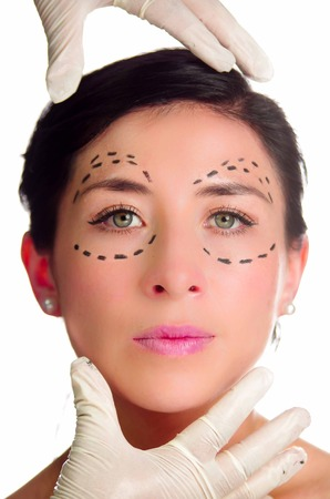 looking into camera: Headshot caucasian woman with dotted lines drawn around eyes looking into camera, doctors hands holding her head, preparing cosmetic surgery.