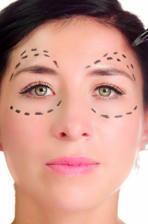 looking into camera: Headshot caucasian woman with dotted lines drawn around eyes looking into camera, preparing cosmetic surgery. Stock Photo