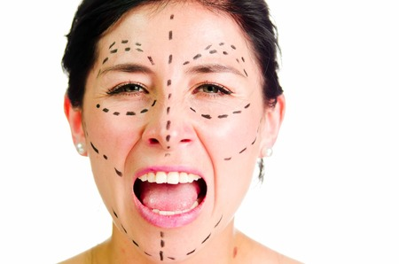 correction lines: Closeup headshot caucasian woman with dotted lines drawn around face looking into camera, preparing cosmetic surgery, screaming facial expression. Stock Photo