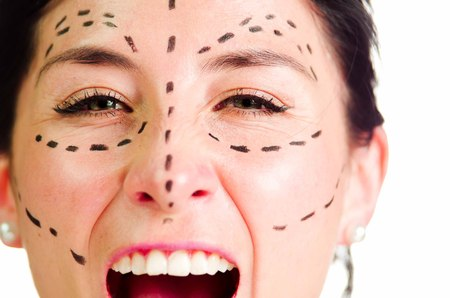 Closeup headshot caucasian woman with dotted lines drawn around face looking into camera, preparing cosmetic surgery, screaming facial expression. Stock Photo