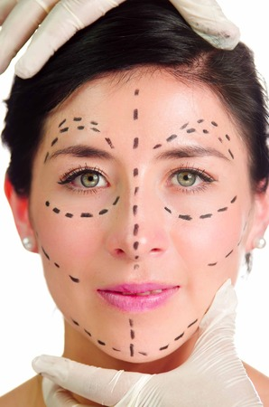looking into camera: Headshot caucasian woman with dotted lines drawn around face looking into camera, doctors hands holding her head, preparing cosmetic surgery.