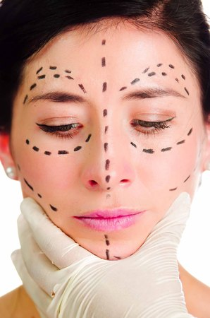 correction lines: Headshot caucasian woman with dotted lines drawn around face looking into camera, doctors hands holding her head, preparing cosmetic surgery.