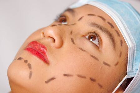 Closeup young womans face preparing for cosmetic surgery with lines drawn on skin, doctor measuring using red tool, as seen from above.