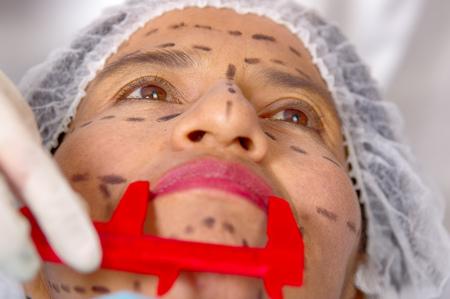 Il fronte della donna del primo piano che prepara per la chirurgia estetica con le linee disegnate sul medico della pelle che misura facendo uso dello strumento, come visto da sopra.