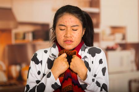 varicela: Retrato de niña con problemas de piel con un suéter de lana roja alrededor de su cuello