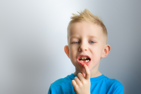 The boy has toothache, caries