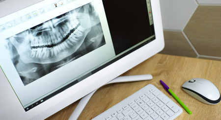 snapshot of a tooth on a computer monitor. x-ray of teeth Stock Photo