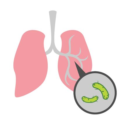 Simple, flat illustration of a lung disease. Pneumonia infographics, drawing for informational, medical poster on a white background. Infection, bacteria in the lungs.