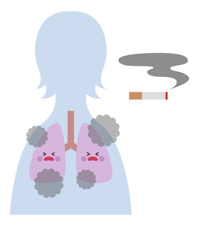 Smoker (female) lungs 免版税图像 - 148118643