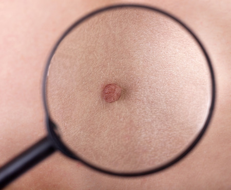 birthmark: birthmark of patient, close up