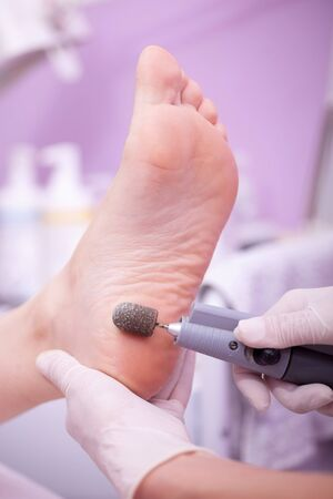podiatry: Peeling feet pedicure procedure in a beauty salon