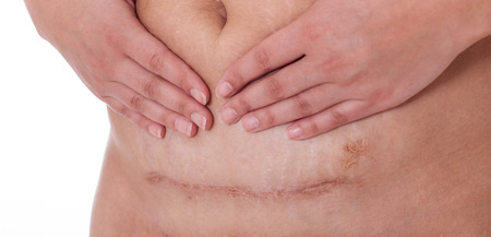 scar from a c-section birth on a whire background.