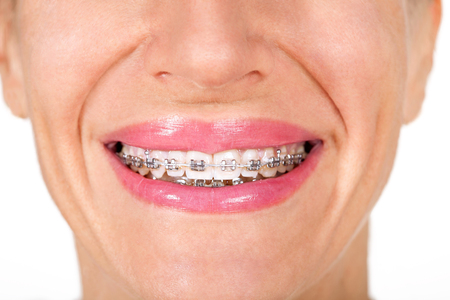 overbite: woman with teeth braces