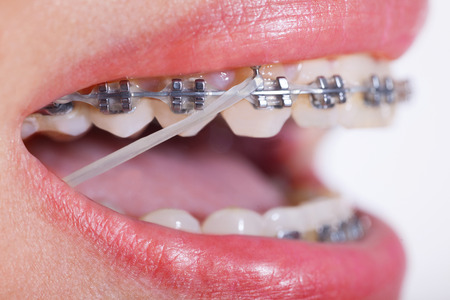 Open Female Mouth with Self-ligating Braces. Orthodontic Treatment