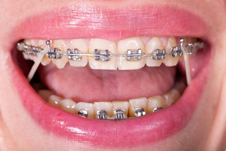 orthodontic: Open Female Mouth with Self-ligating Braces. Orthodontic Treatment