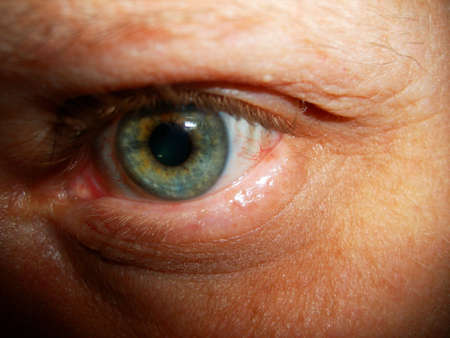 A close-up of a shadowed, tired looking and bloodshot eye. photo
